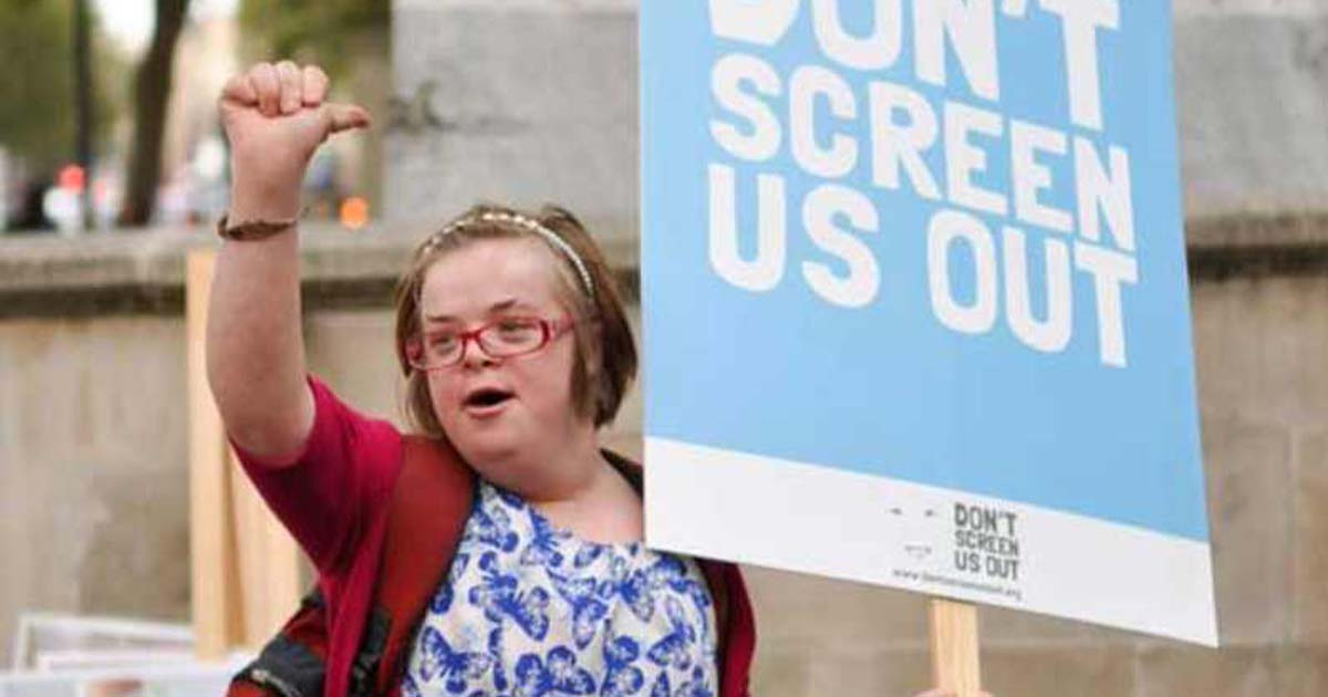 UK Targets Children with Down Syndrome